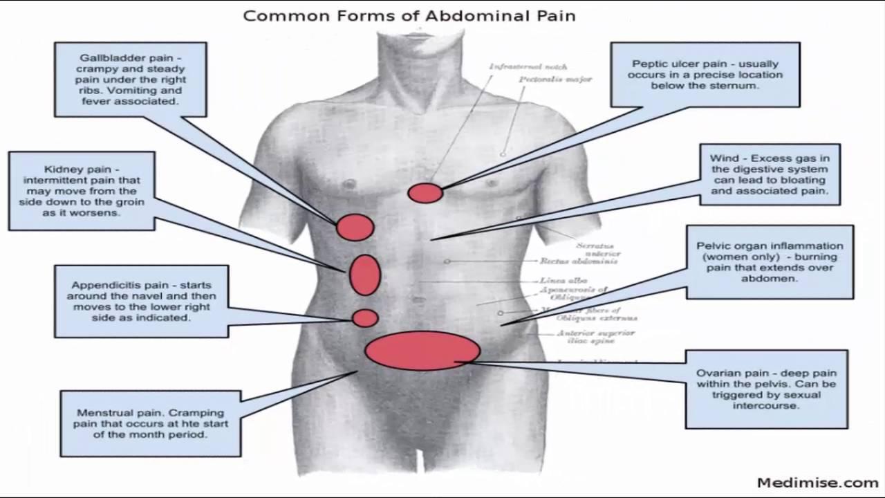 hight resolution of abdominal pain