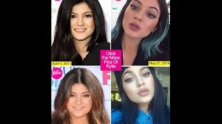 Has Kylie Jenner Had Lip Injections, Experts Say Yes