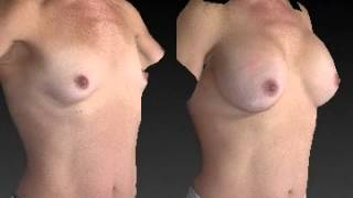 Breast Augmentation 3D Before and After 13