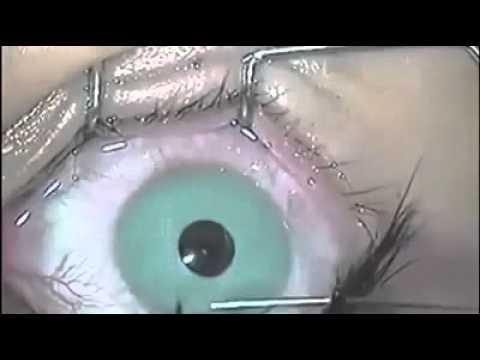 Операция по изменению цвет глаз. Слабонервным не смотр