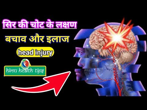 Head injury | Head Injury Symptoms | Head Injury Treatment | Types of Head Injury | brain injury