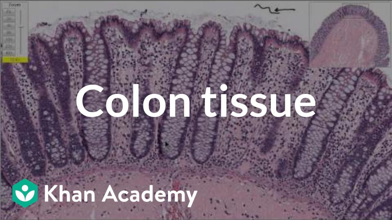 Normal colon tissue | Gastrointestinal system diseases | Health & Medicine | Khan Academy