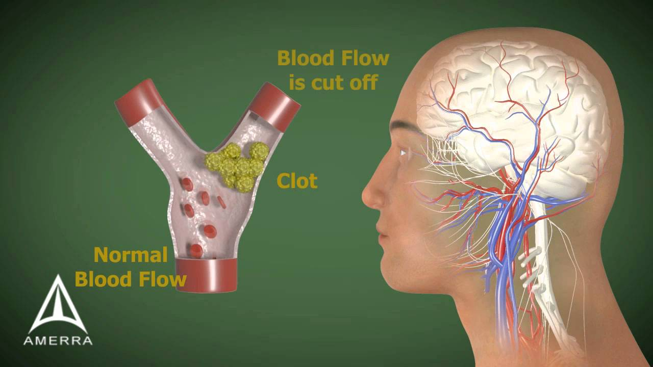 Stroke - 3D Medical Animation - - 64.8KB