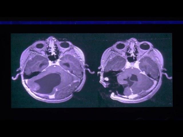 RM intraoperatoria para tumores cerebrales y en epilepsia.