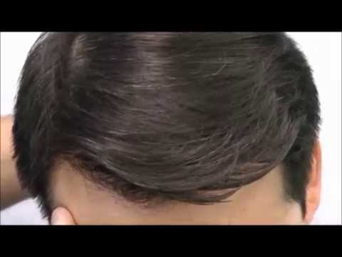 Asian Hair Transplant Patient 8 Months Post-Op | Sure Hair International Toronto, Ontario