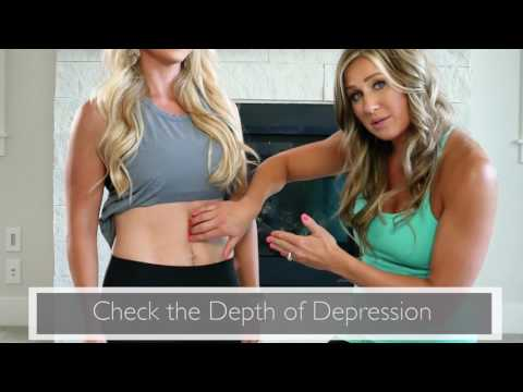 How to Check to See if You Have Diastasis Recti