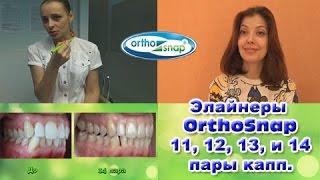 Элайнеры OrthoSnap 11, 12, 13 и 14 пары капп.(Делюсь опытом исправления прикуса зубов с помощью элайнеров Orthosnap (Ортоснэп). Лечение прохожу в стоматологи..., 2016-11-12T16:37:38.000Z)