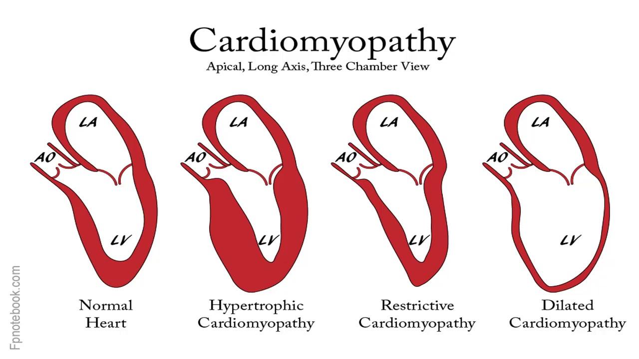 شرح الباطنة العامة د مصطفي Dilated Hypertrophic Cardiomyopathy Chronic Heart Disease Heart Disease Treatment Heart Failure Symptoms