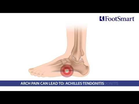 What is Arch Pain? Symptoms, Prevention