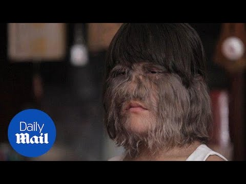 Little Thai is crowned the hairiest girl in the world - Daily Mail