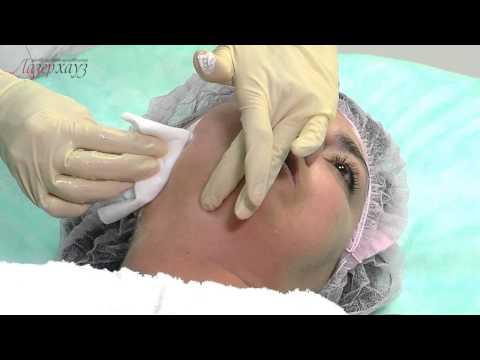шугаринг эпиляция верхней губы  и брови