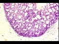 What is Carcinoma in situ? - Pathology mini tutorial