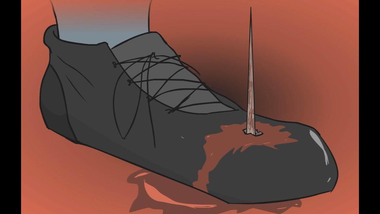 Image result for tetanus