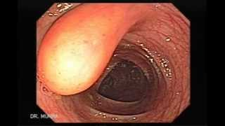 Colonoscopia de Lipoma del Colon Transverso
