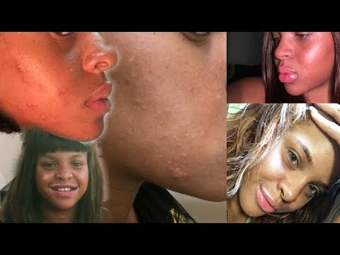 MY SKIN JOURNEY & PRODUCTS: ECZEMA + ACNE – PICTURES YALL    LEAH BETH
