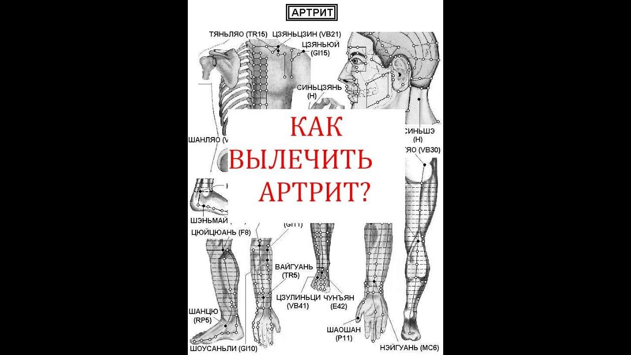 возможно ли вылечить артрит