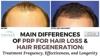 Huge Differences in Treating Hair Loss with PRP Alone Versus the Hair Regeneration PRP Combination   Amiya Prasad, M.D.