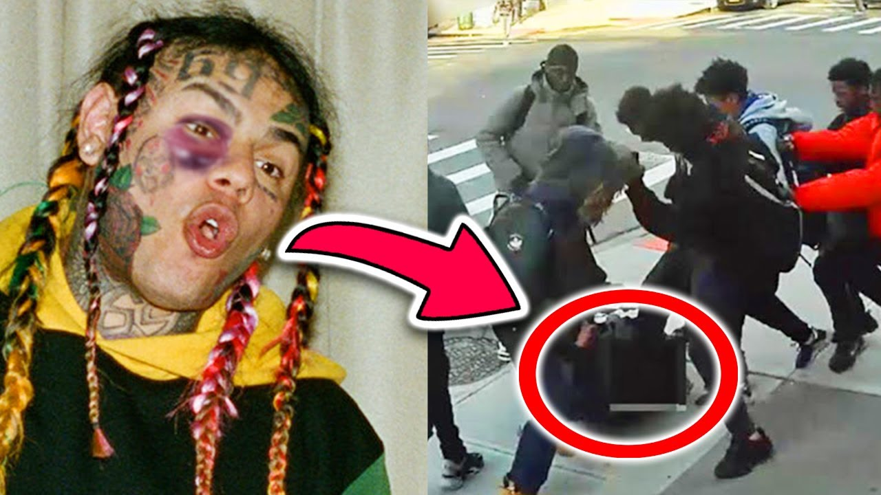6ix9ine's Critical Condition Is Scary