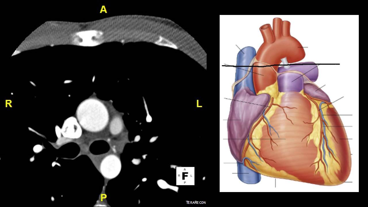 Axial CT Heart - YouTube
