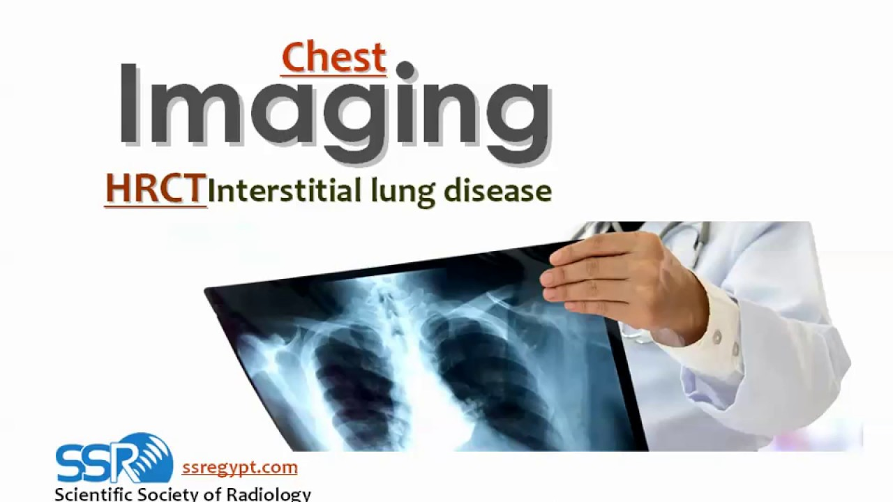 Interstitial lung diseases imaging (New concepts) – Prof. Dr. Mamdouh Mahfouz