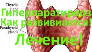 Гиперпаратиреоз - причины, симптомы и лечение
