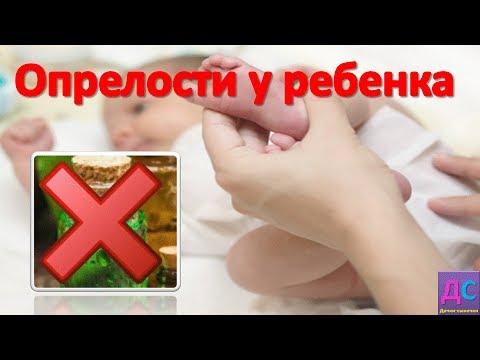 Как вылечить ОПРЕЛОСТИ у РЕБЕНКА?/Чем опасны опрелости для малышей?