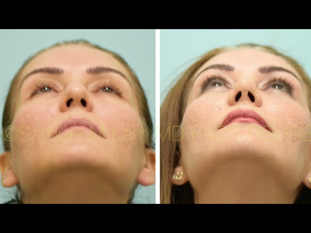 Dallas Rhinoplasty, Fat Transfer, Lower Blepharoplasty, and Lip Microfat Before and After