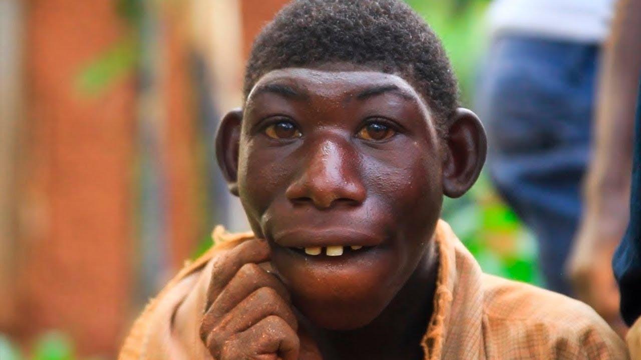 شاب عمره 21 سنة يشبه القرود ويحب العيش في الغابة