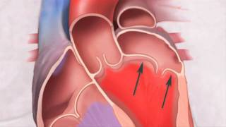 Prolapso da Válvula Mitral: o que é?