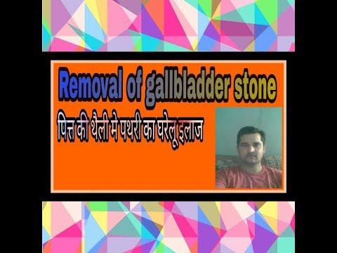 पित्त की थैली की पथरी।। पित्ताशय की पथरी।। pitt ki thali(pittshay) ki pathri|| Gallbladder stone