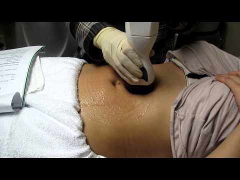 Abdominal Skin Tightening With Viora Reaction,Los Angeles,Anaheim,Fullerton,Brea,Pasadena