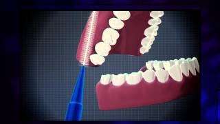 How to use an interdental brush effectively