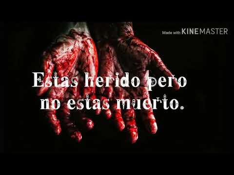 estas-herido,-pero-no-estas-muerto.