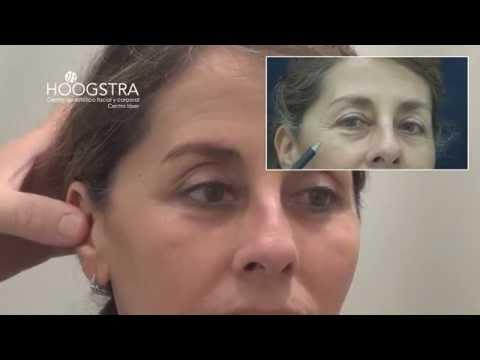 Rejuvenecimiento de párpados, nariz y labios con láser de Dióxido de Carbono (14117)