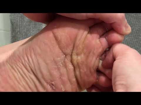 Athletes foot scraping