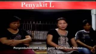 Youtube: Kesaksian Ibu Petrik, Sakit Lupus - Hotben Siahaan