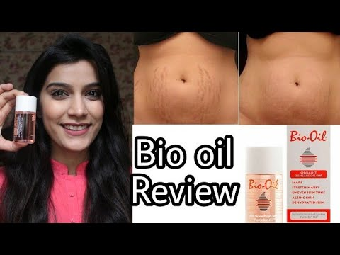 Bio Oil Review In Hindi | Remove Stretch Marks/Scars | Super Style Tips