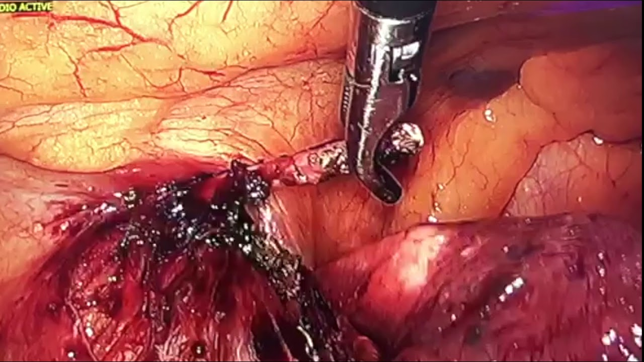 Video 2: VATS Extraction of a Migrating Kirschner Wire Into the Mediastinum and Lung