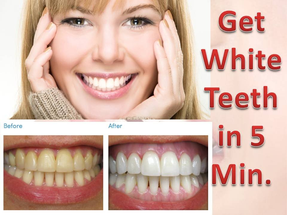 How To Whiten Extremely Yellow Teeth At Home In 5 Minutes Works 100