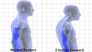FIX BAD POSTURE BRACE | Keeps Your Back Straight - NO HUMP!