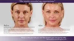 Botox, Juvederm & Voluma Before and After Photos