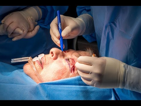 Closing Eye Lid Incision by Dr. Drew at Inspire Cosmetic