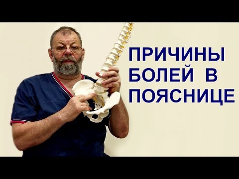 Болит поясница. Причины боли в пояснице, пояснично-крестцовые прострелы, люмбаго и люмбаишиалгии