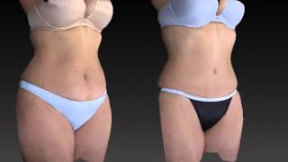 Tummy Tuck Before and After - 3