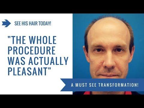 Hair Transplant Testimonial Hasson & Wong