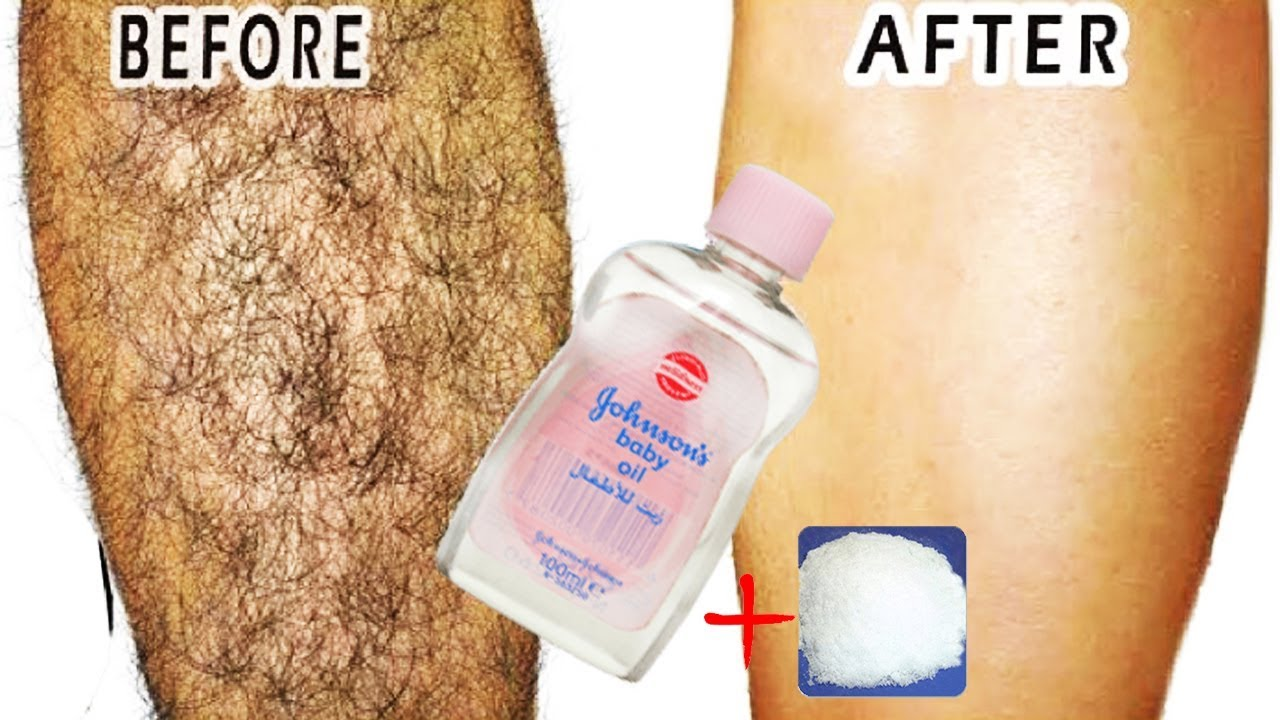 Updated How To Permanently Remove Unwanted Hair In 3 Days No