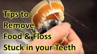 How to Remove Food Stuck in Teeth & Floss Stuck Between Teeth. My Teeth Pain Care