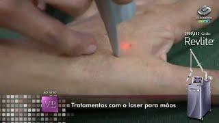 RevLite Laser - Tratamento para as mãos com laser no Programa Você Bonita - TV Gazeta.