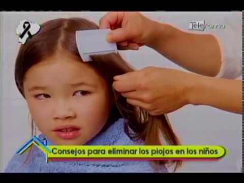 Consejos para eliminar los piojos en los niños