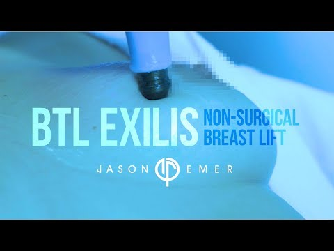 Non-Surgical Breast Lift |  Laser Breast Lift | BTL Exilis | Radiofrequency Skin Tightening